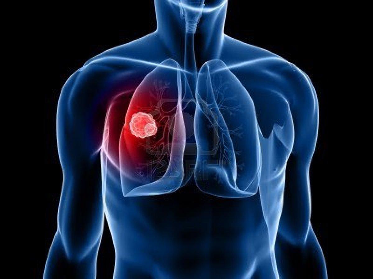 imagen cancer pulmon: